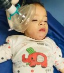 نجات جان کودک ده ماهه از خفگی و سیانوز شدید در بیمارستان شهید گنجی+تصاویر
